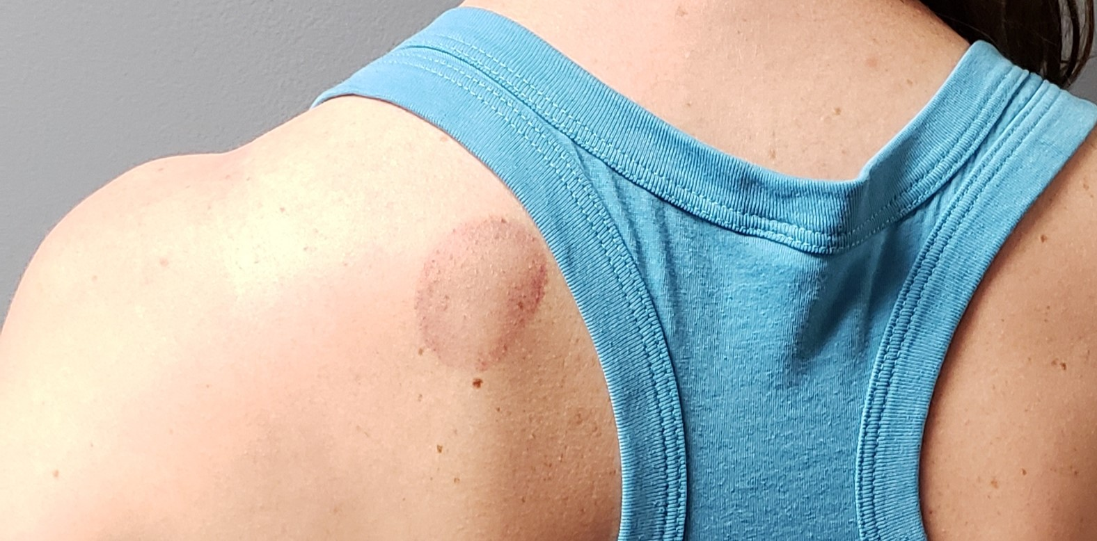 cupping mark